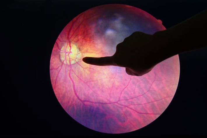 about diabetic retinopathy