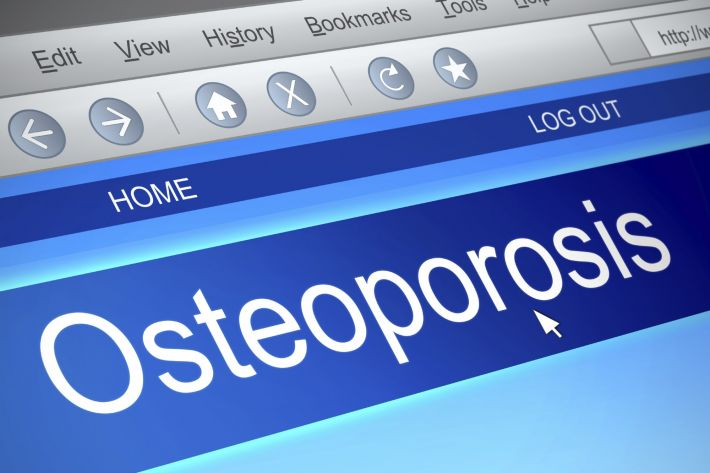 Finding out about Osteoporosis and its treatment