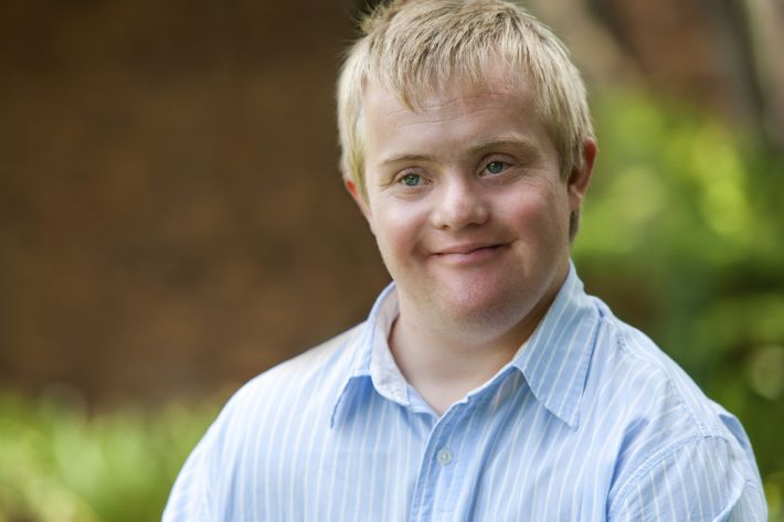 Hypothyroidism and Down's Syndrome