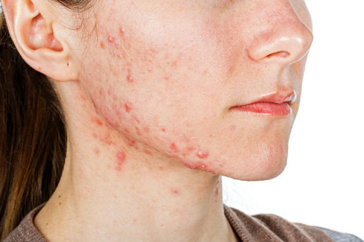why PCOS can cause acne