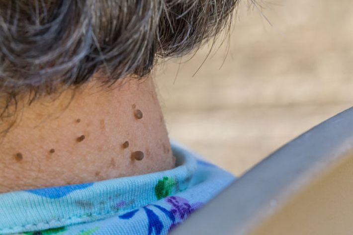 skin tags may warn of insulin resistance
