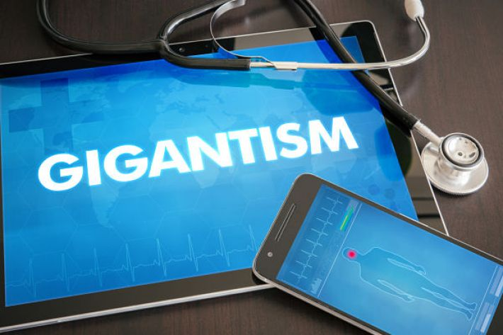 Gigantism - causes, symptoms and treatment